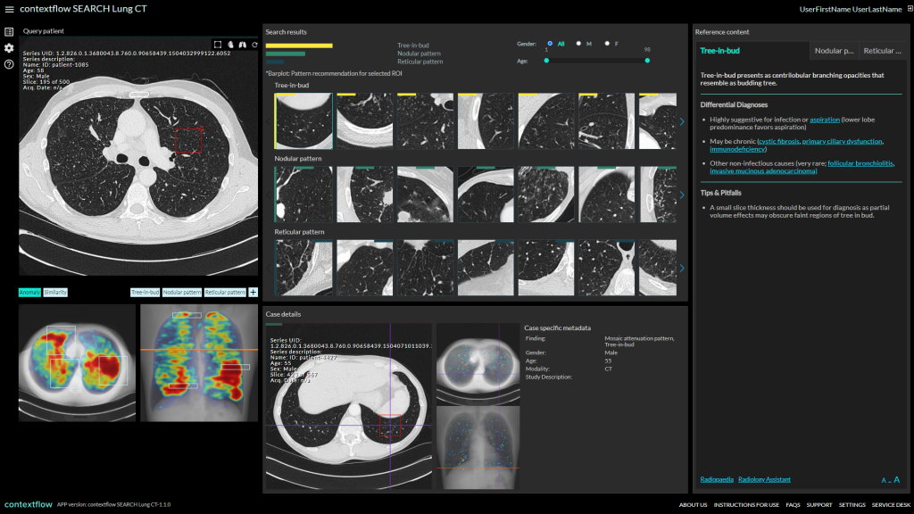 contextflow Lung CT